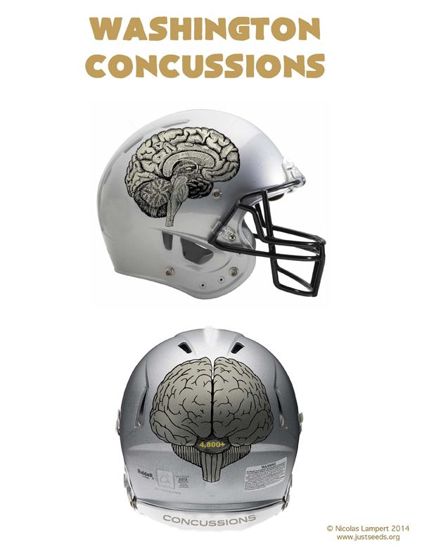 concussionshelmet_600.jpg