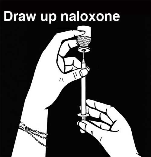 Overdose Kit Instructions